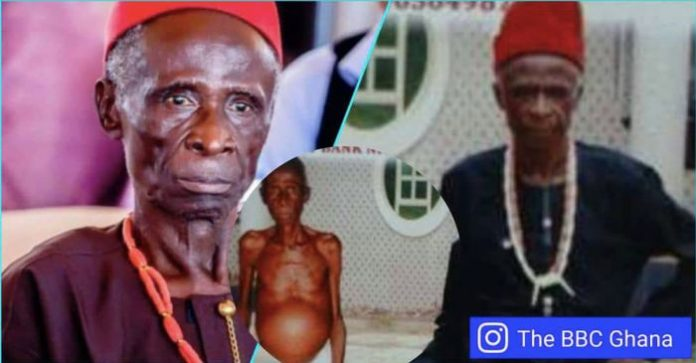 Nollywood actors who died while asking for funds for medical treatment