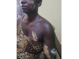 28-Year-Old Man Burns Girlfriend With Hot Electric Iron For Taking His GH¢7